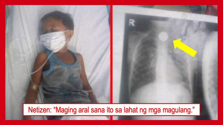 Bata na nakalunok ng piso, ihiningi ng tulong sa netizens
