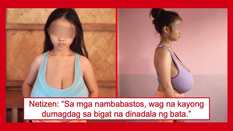 12-taong gulang na babae sa Palawan, umaabot ng 20kg ang bigat ng dibdib